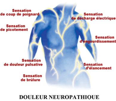 douleur-neuropathique